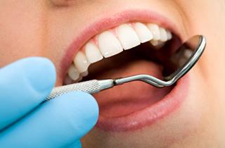 dental fillings in pasadena